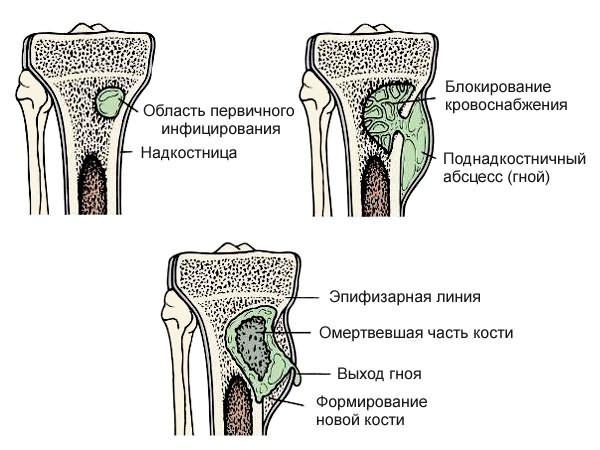 csípőfájás a bal ízületben)