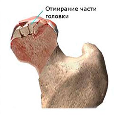 csípőfájás az ágyékba)