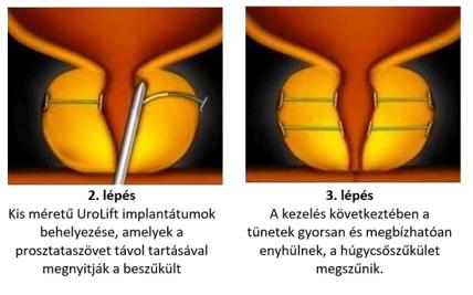 együttes kezelés készülékkel találkozó a csípőízület ízületi gyulladásáért