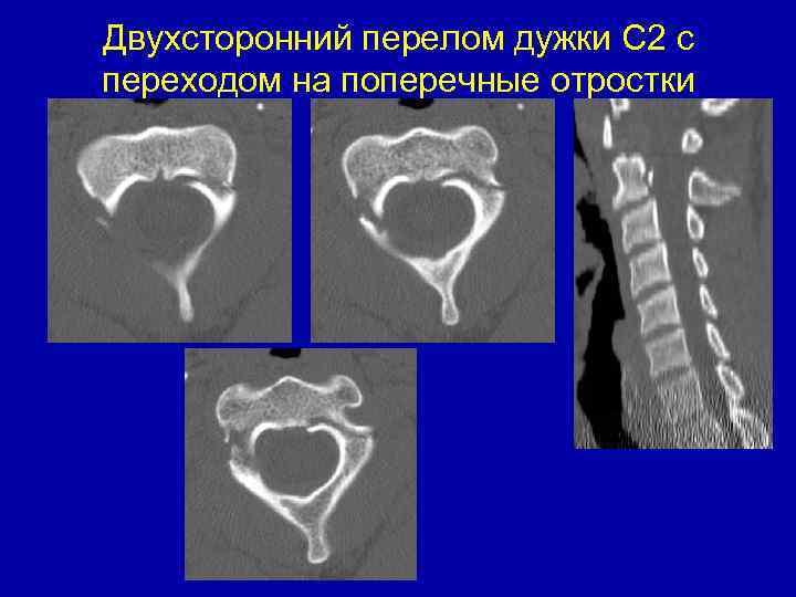 övfájás a térdízületben a térd elülső keresztszalagjának sérüléseinek kezelése
