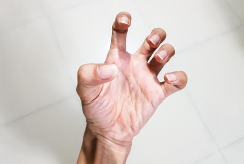 kézgyulladás ízületi gyulladás