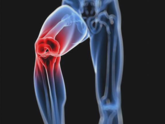 melyik ízületi krém jobb fájdalom és fájdalom a csontokban és ízületekben