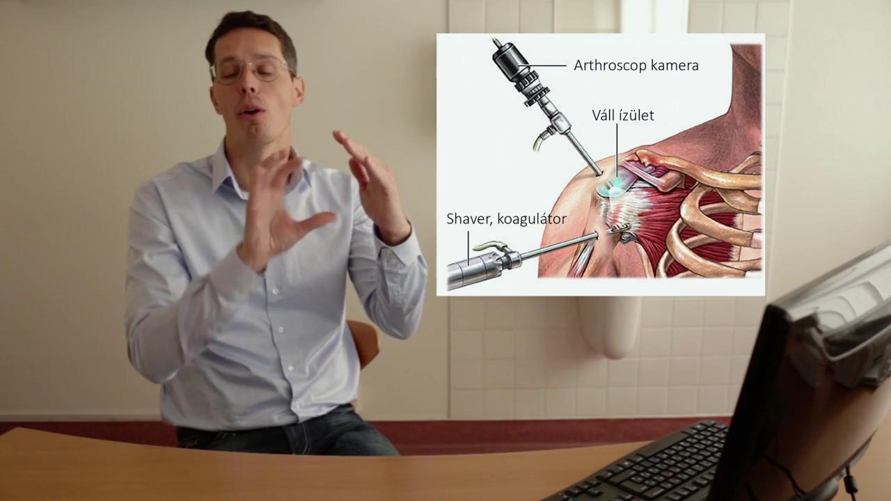a térd artrózisának kezelése modern módszerekkel
