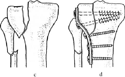 az első szakasz térdízületének deformáló artrózisa)