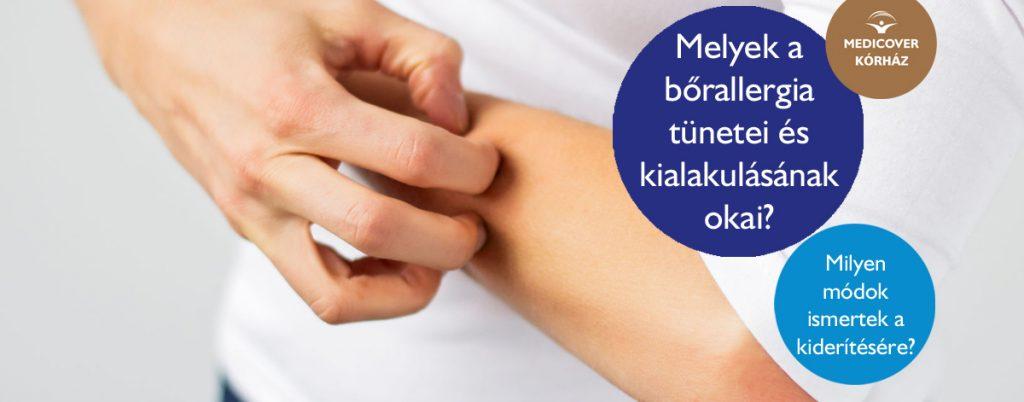 Bőrgyulladás - Tudástár