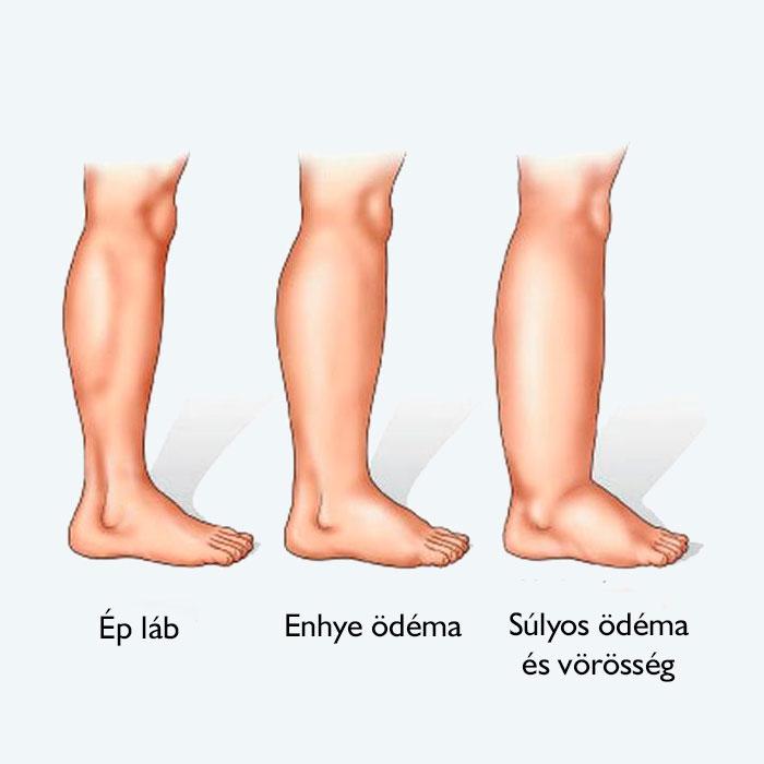 lábak piros térdízületek)