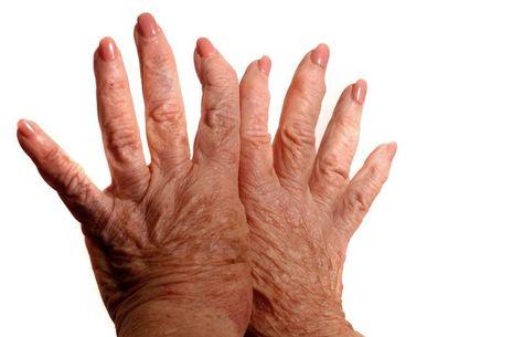 kéz gyulladas