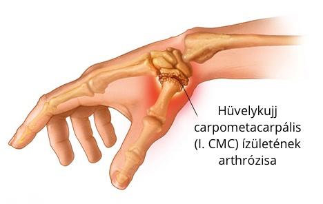 hüvelykujj ízületi kezelés)