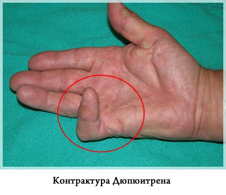 éles varrásos fájdalom a vállízületben