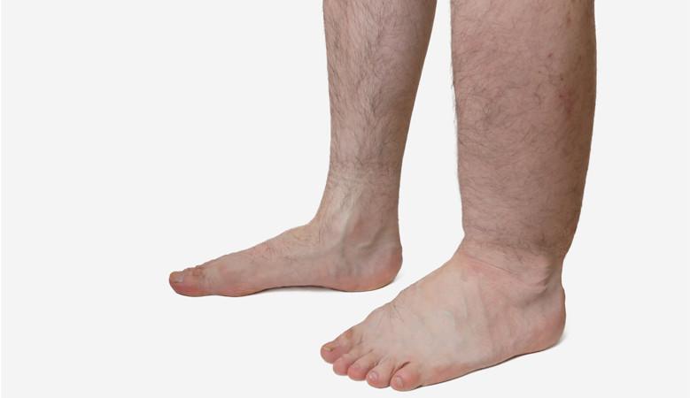 ütés a láb ízületén, hogyan kell kezelni