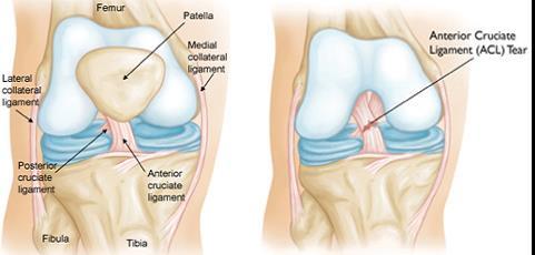 a térd legfontosabb artrózisáról)