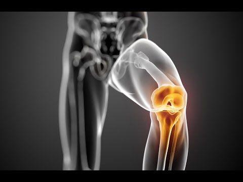 emberi térdfájdalom csípőízület az ok jobb oldalán
