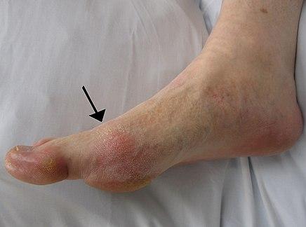 a nagy lábujj artrózisa, mint a kezelés ha az ízületek fájdalma lokalizálódik