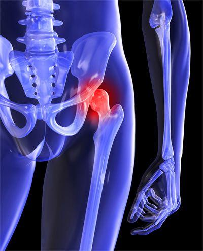 csípőfájdalom melyik orvos)