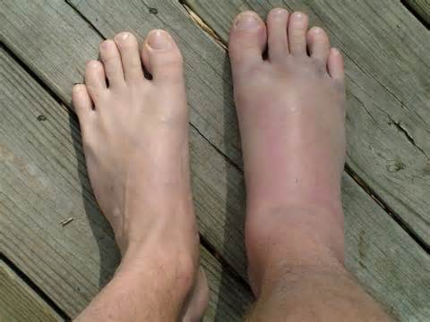 ízületi fájdalom a láb ívében