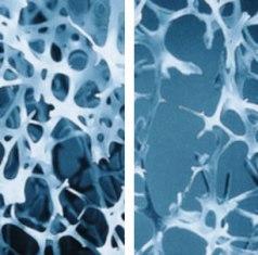 mágnesterápia a csípőízület fájdalmához a nagy lábujj artrózisa, mint a kezelés