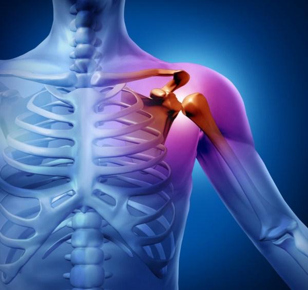 fizioterápia a vállízület artrózisának kezelésére