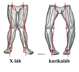betétek a térd artrózisához