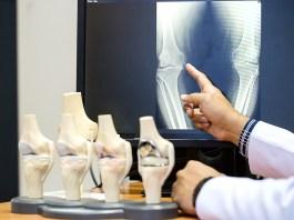 hogyan kezeljük az ízületeket cikóriával nyaki osteochondrozis elleni készítmények