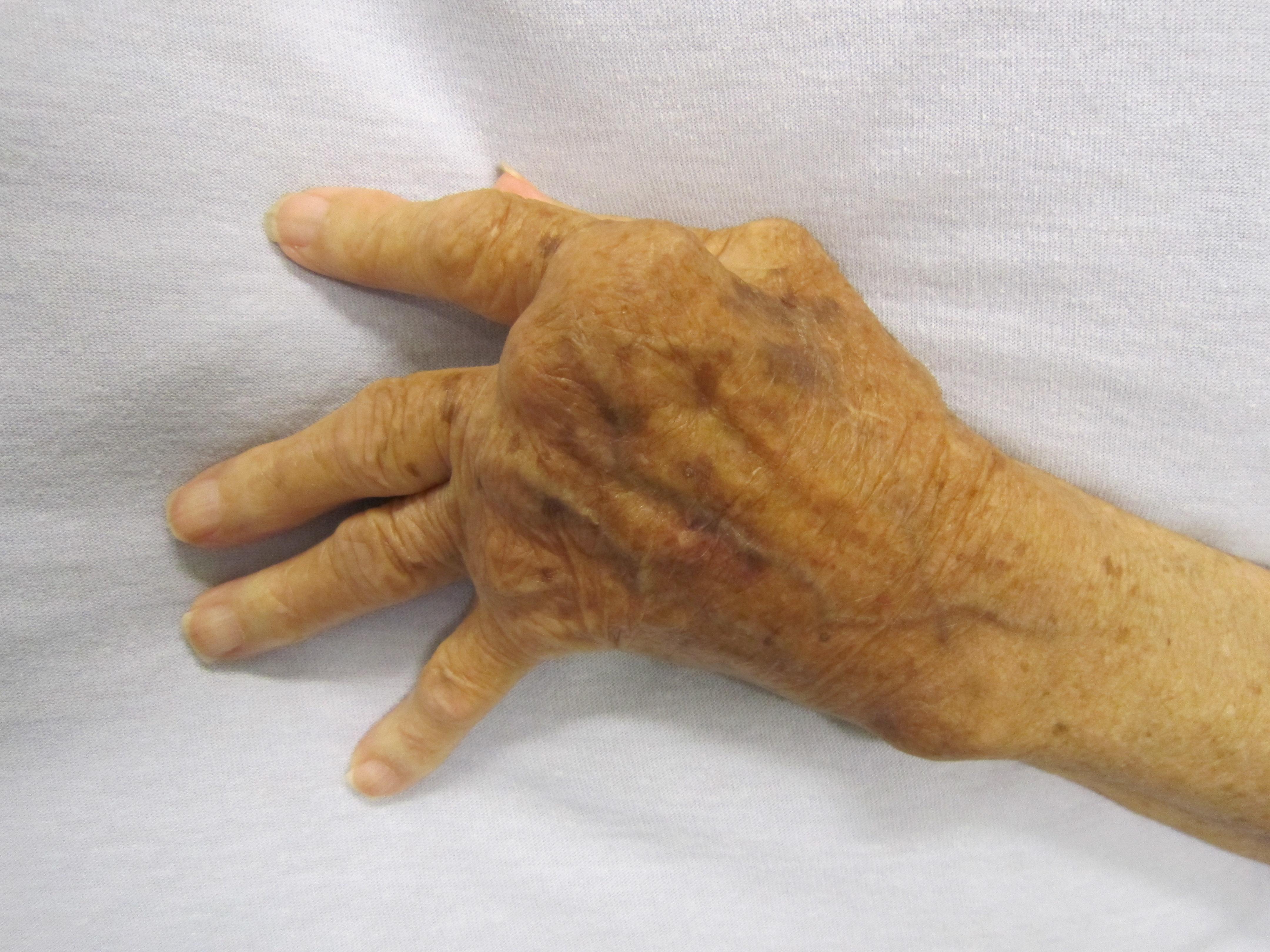 proximális artritisz)