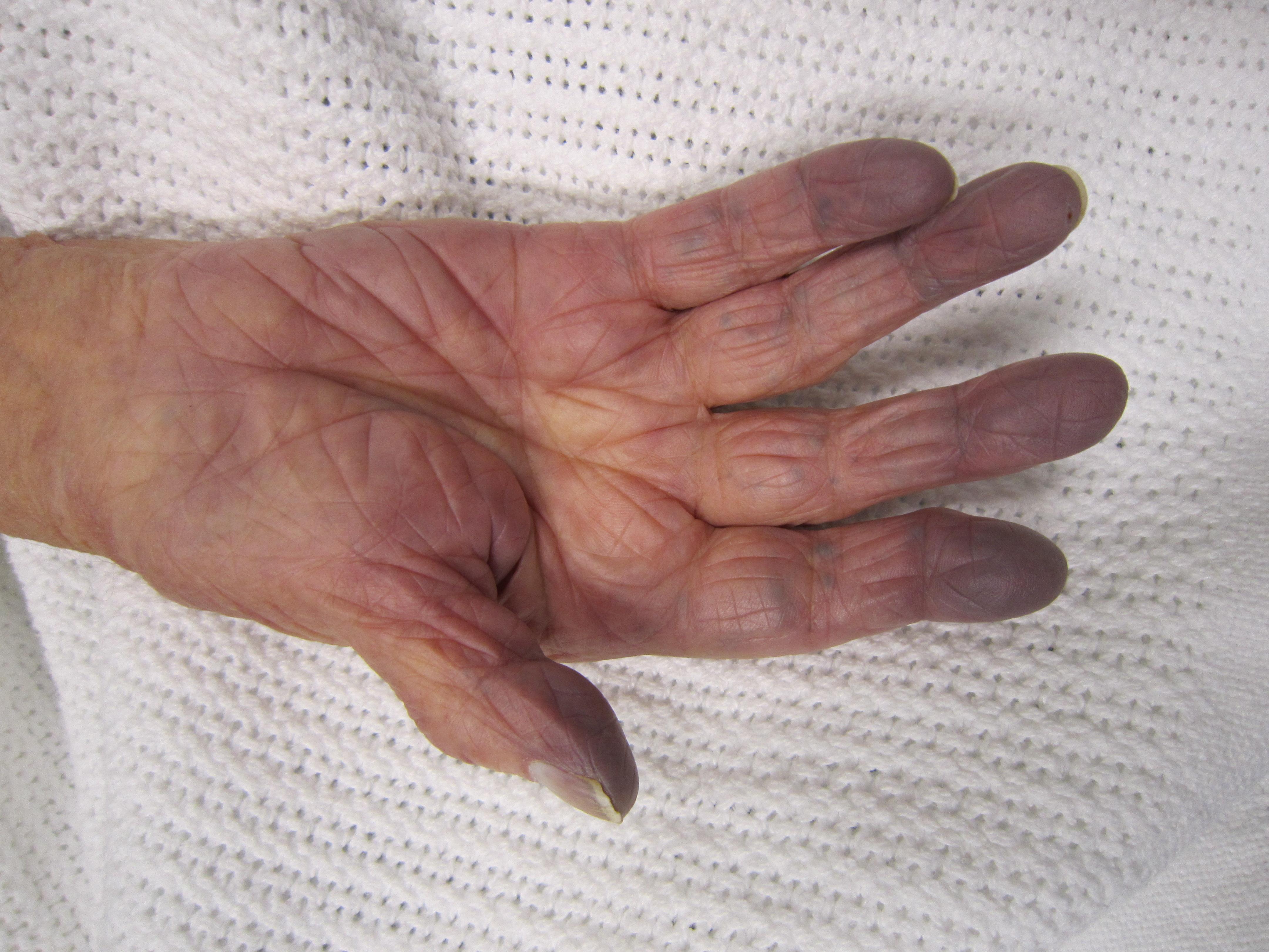 metacarpophalangealis synovitis kezelés a jobb kéz duzzanata az ízületen