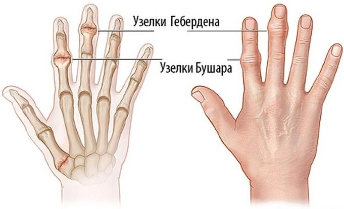 fájdalom a bal kéz ízületében hajlításkor)