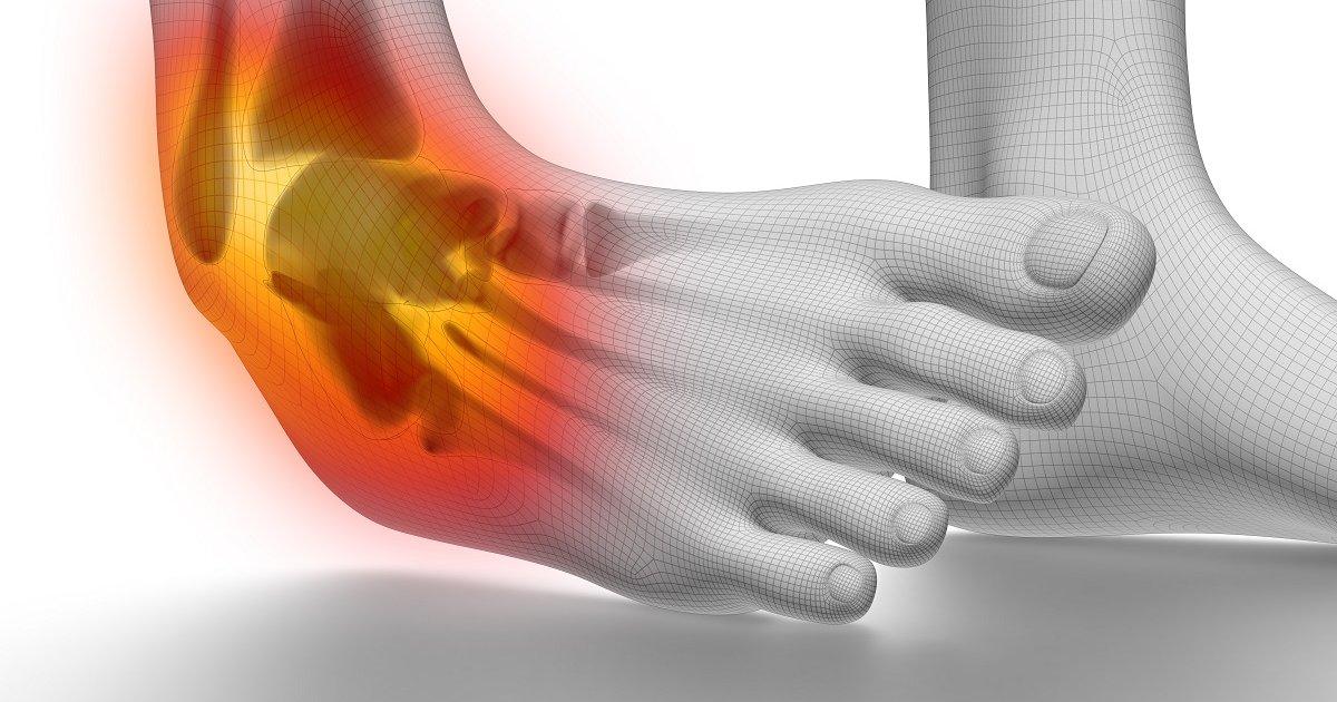 csuklóízület csontritkulása csípő- és térdízületek ízületi gyulladása 2 fok