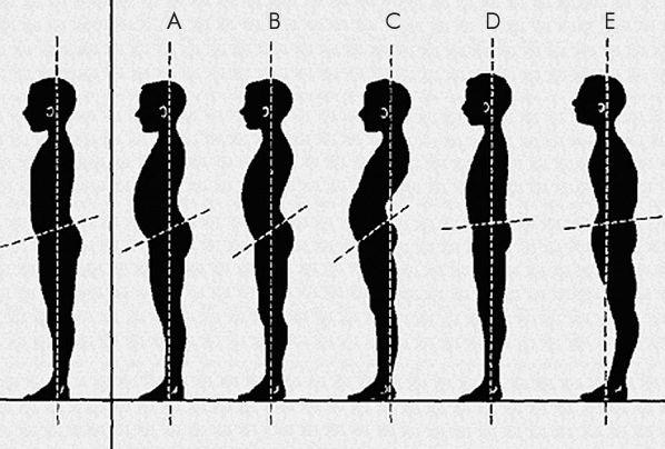 fájdalom a csípőízületekben és a gerinc görbülete)