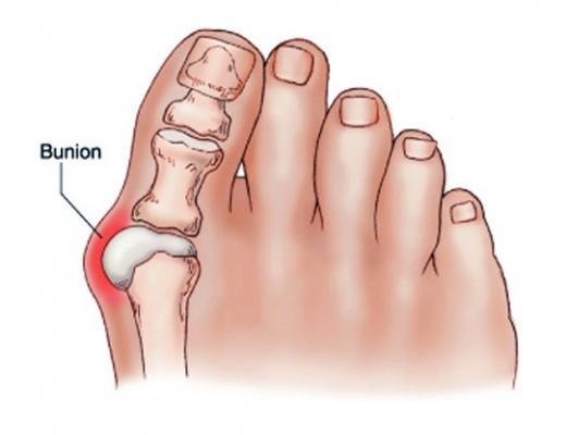 fájdalom a gyűrűs lábujj ízületében