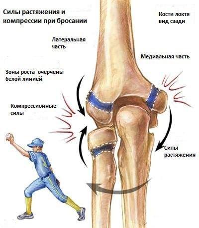 csípőízület csontvelő ödéma kezelése csukló sérülések okai