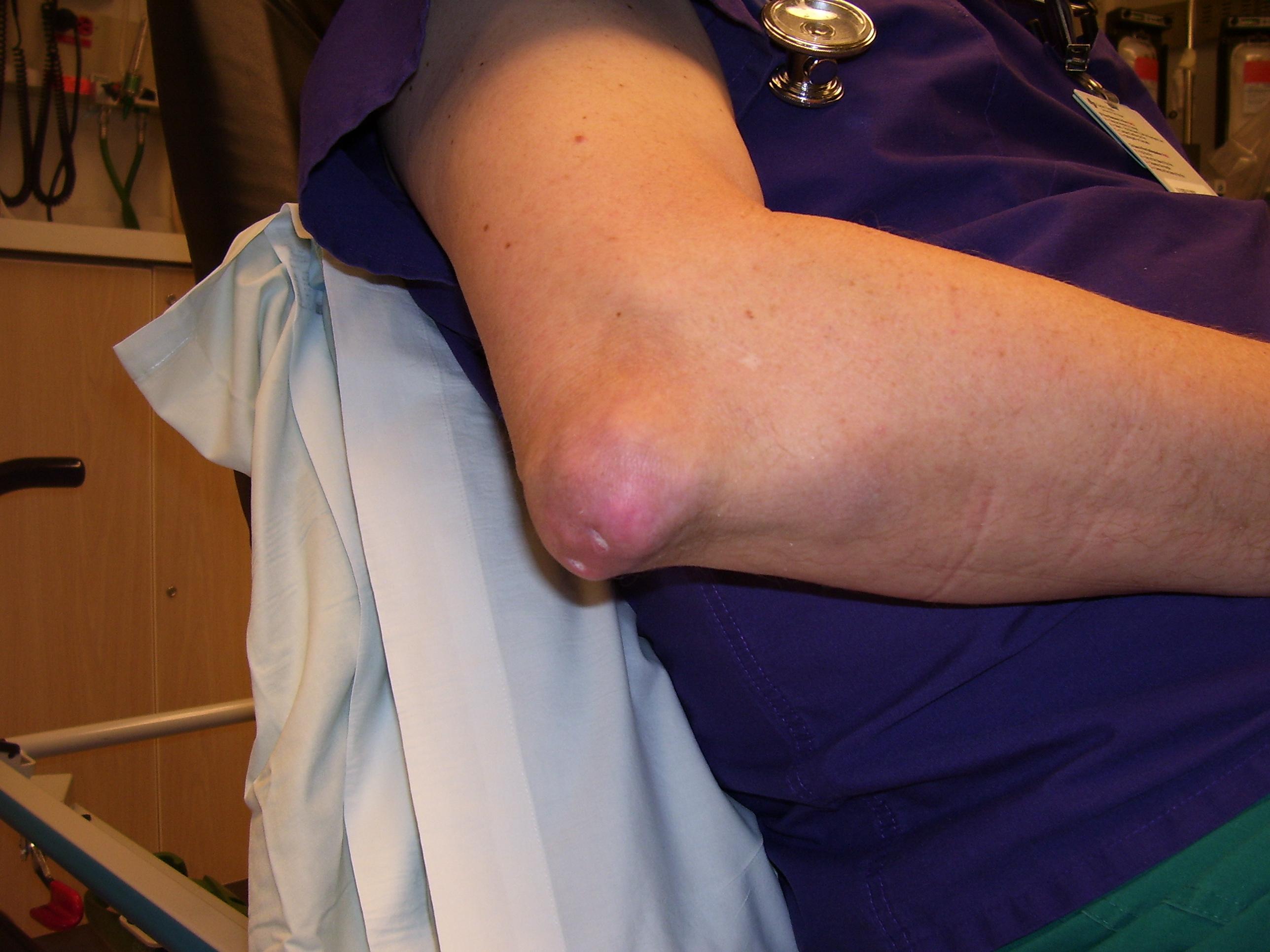 fájdalom a könyök ízületeiben a vállízület deformáló artrózisa 3 fok