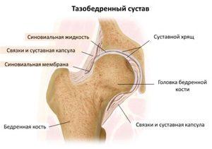 folyamatosan fájó fájdalom a csípőízületekben)