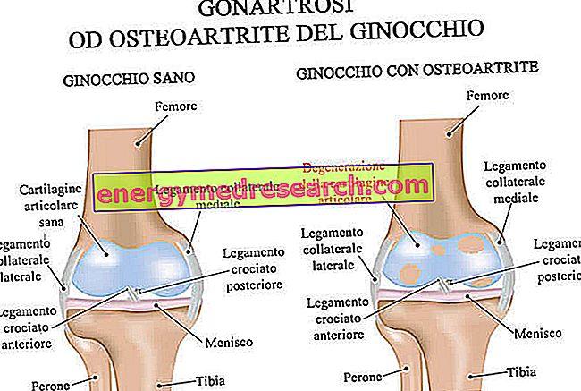 gonarthrosis betegség ízületek)