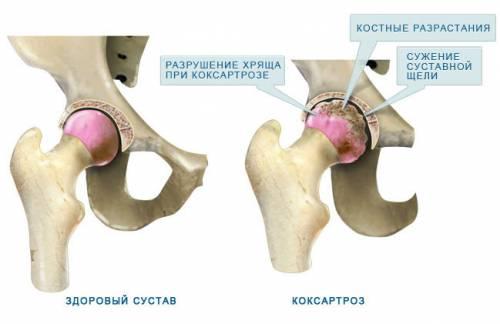 Felnőttkori combfejelhalás (necrosis capitis femoris) tünetei, kezelése