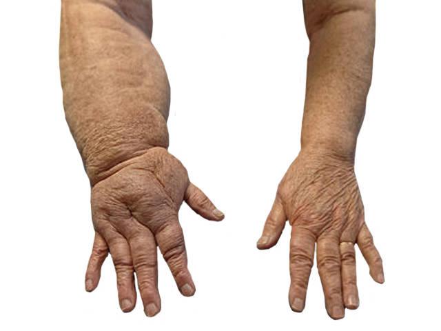 gyógyszerek artrózis és ödéma kezelésére