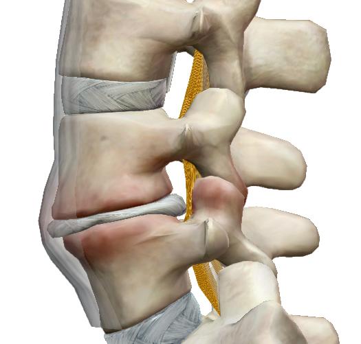 Hogyan kezelhető a farokcsont fájdalma?