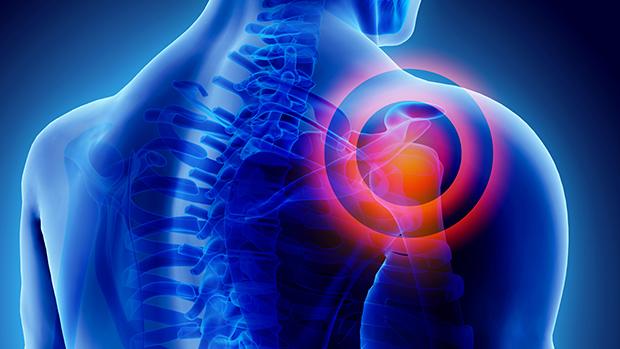 hogyan kell kezelni a vállízület artrózisát