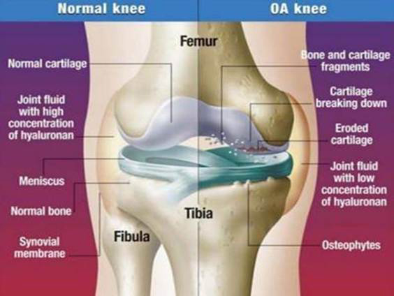 hogyan kezeljük a 3. fokú artrózist