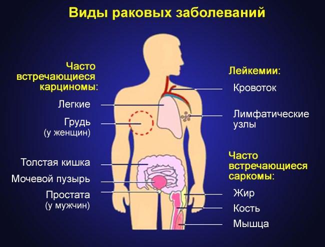 hogyan kezeljük a vállízület szokásos diszlokációját)