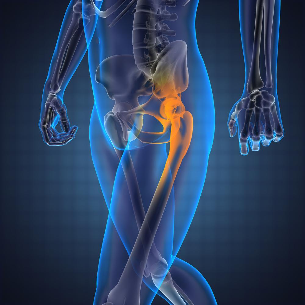 hogyan lehet enyhíteni a csípőízületi gyulladást