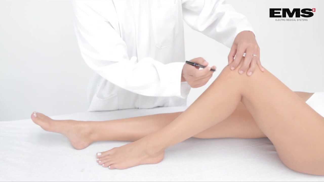 hogyan lehet enyhíteni a duzzanat térdgyulladással