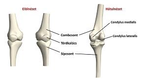 hogyan lehet kezelni a térd 2. fokú artrózisát