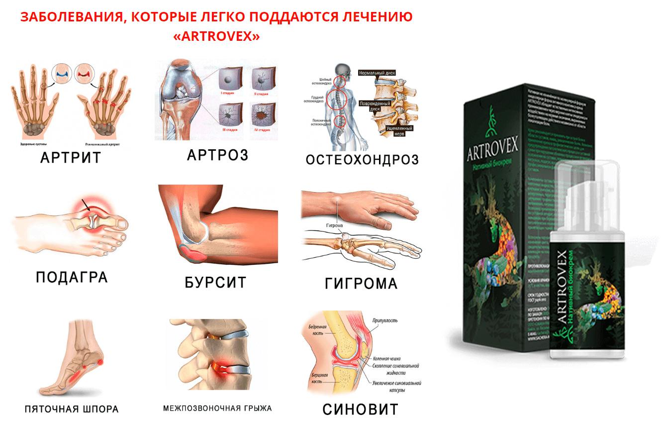 kenőcsök a csípőízület artrózisának kezelésére)