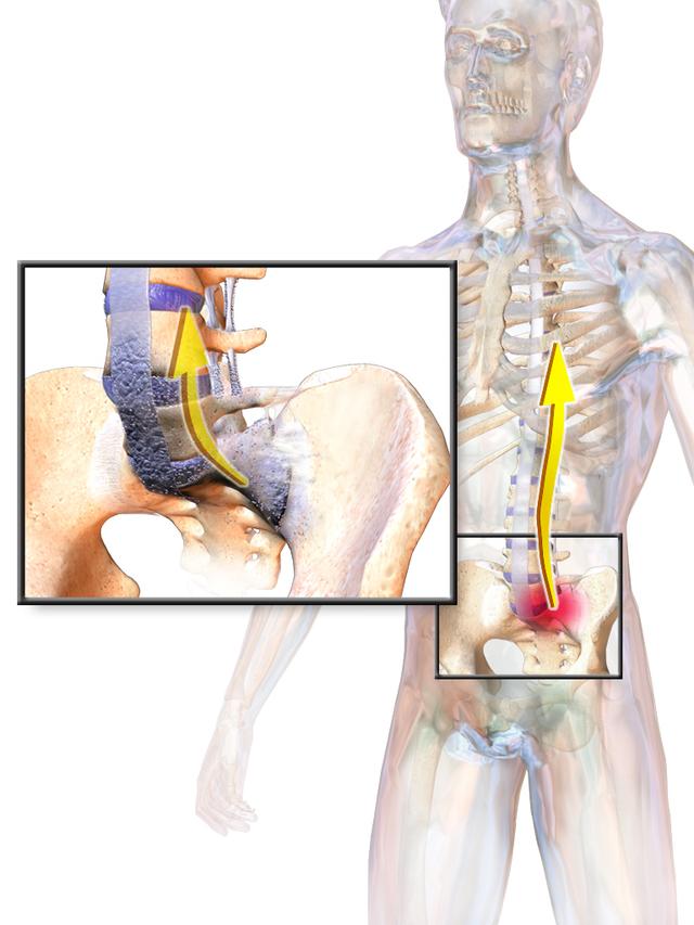 A Bechterew-kór és tünetei - fájdalomportámotorion.hu