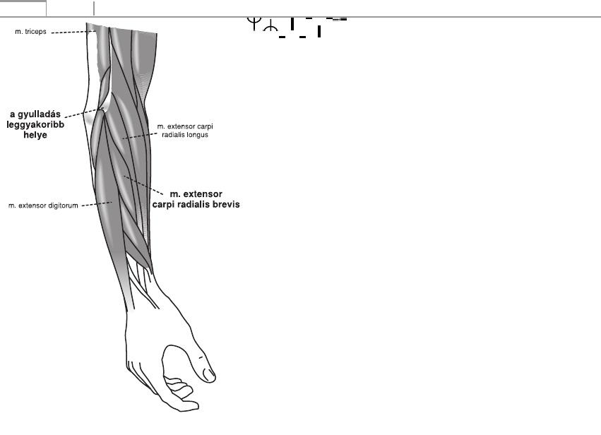 könyökízület epicondylitis kezelése dimexidummal