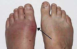 zsibbadás a láb fájó ízülete