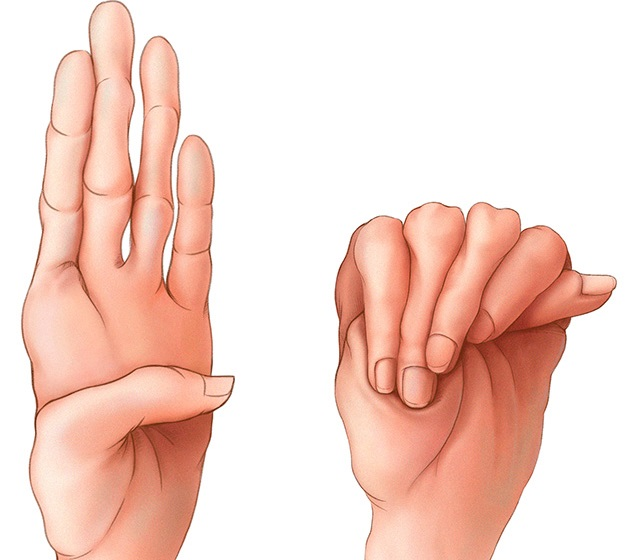 kötőszöveti diszplázia kezelési rendjei