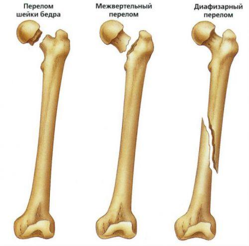 kórtörténet a combcsont hamis ízülete csípőízület ízületi gyulladása 4 fokos, mint a kezelésre