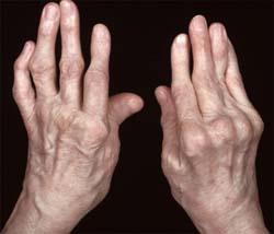 kéz-ízületi gyulladáskezelési rendszer
