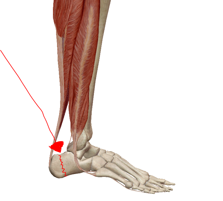 Lábfájdalom térdtől lefelé | Harmónia Centrum Blog